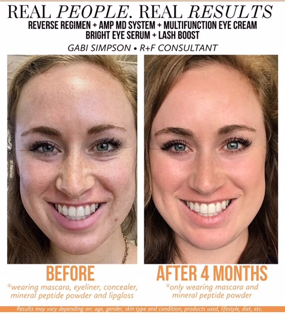 Rodan Fields Before And After Photos Stories Shopping And Info